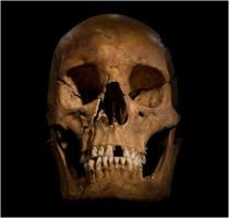 Skull of Richard III
